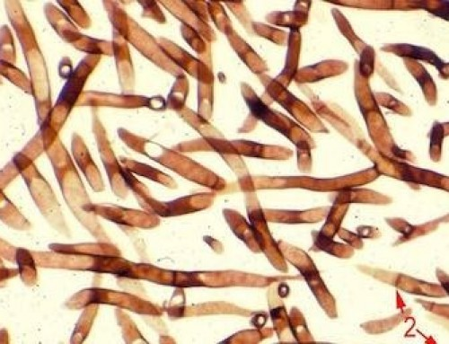Gombák a testünkben