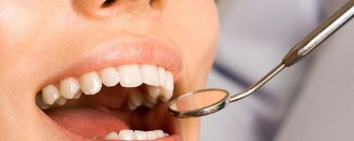 biológiai fogászat